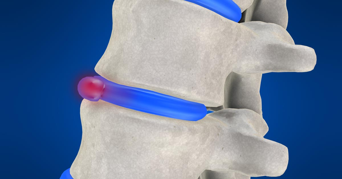 Spinal decompression therapy in Bay Shore